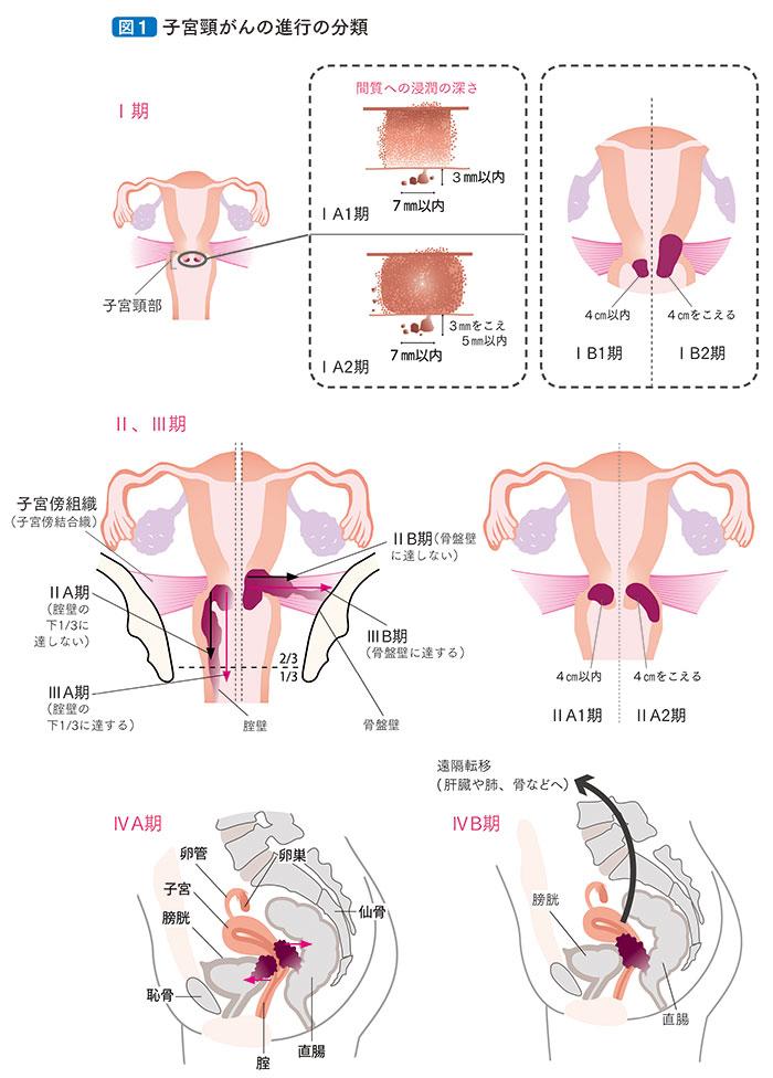 宮頸 ん 子 末期 が 症状
