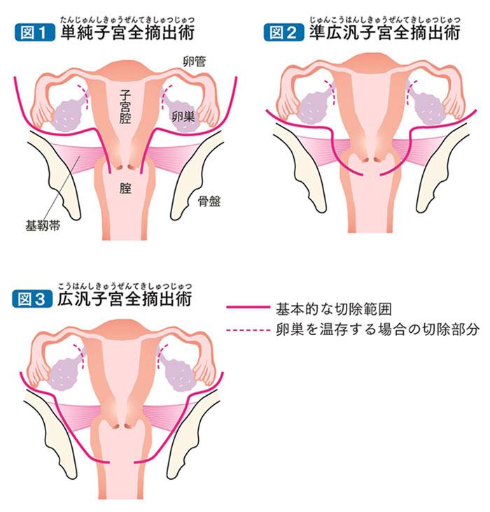 頚 癌 と は 子宮 がん診療ガイドライン│子宮頚がん│治療ガイドライン